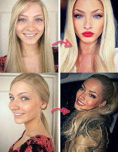 Alena shishkova before and after - differently shaped eyebrows, nose job, cheek injections?, lip injections, blue contacts, & veneers. & better contouring makeup:)