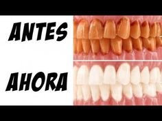 LOS DENTISTAS NO QUIEREN QUE SEPAS ESTE TRUCO PARA ELIMINAR EL SARRO Y BLANQUEAR LOS DIENTES Vicks Vaporub, Power Clean, Holistic Medicine, Simple Life Hacks, Natural Remedies, Health Fitness, Youtube, Healthy, Food