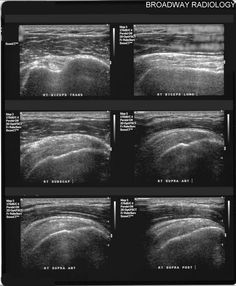 normal shoulder ultrasound