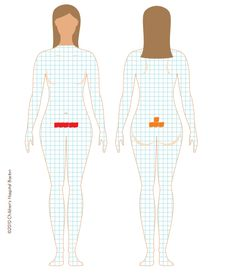 "The website ""Project Endo"" has a link to a PDF Pain Mapping Worksheet.  I thought this was interesting.  You print out the diagram of a woman and then you color the squares where your pain is located (red for intense pain, orange for moderate pain).  You can then bring it with you when you go to see your doctor, http://projectendo.co.uk/2012/11/07/pain-mapping/"