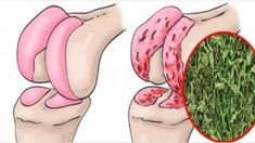Peppermint regenerates the cartilage of the hip and knees .- La menta piperita rigenera la cartilagine di anca e ginocchia. Ecco la ricetta Regenerates cartilage of hip and knee - Cold Remedies, Health Remedies, Natural Remedies, Health And Beauty, Health And Wellness, Health Fitness, Natural Medicine, Healthy Tips, Natural Health