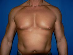 Gynecomastia surgery cost in Hyderabad, 09 Male breast surgery treatment Pay-in-monthly starting price cost and insurance and cashless treatment gynecomastia surgery Tricyclic Antidepressant, Top Hospitals, Extra Skin, Plastic Surgery Procedures, Female Hormones, Tummy Tucks, Medical Conditions, Breast