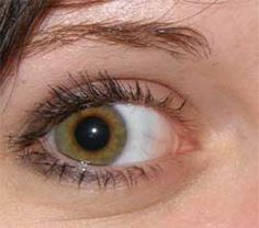 Home Remedies For Bags Under Eyes @thebeautyinsiders Worry no more! Check this out. #beautytips #eyebags
