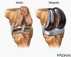 23 Ideas De Prótesis Rodilla Rodillas Protesis De Pierna Cirugía De Rodilla