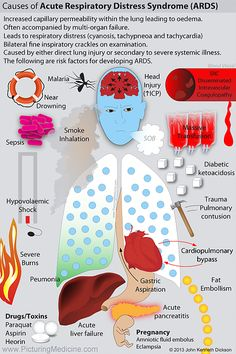 Causes of ARDS Acute Respiratory Distress Syndrome Acute Respiratory Failure, Acute Respiratory Distress Syndrome, Respiratory Therapy, Medicine Notes, Medicine Doctor, Emergency Medicine, Medicine Pictures, Nursing Information, Medical Mnemonics