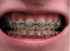 Gettin braces soon!!