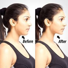 Get Rid Of Double Chin Forever With This Simple Trick – All You Need Is One Ingredient!