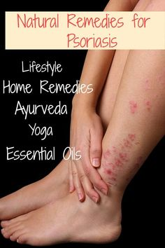 Remedies For Constipation The Best Natural Remedies for Ayurveda Lifestyle, Home Remedies, Ayurveda, Yoga, Essential Oils Home Remedies Constipation, Home Remedies For Psoriasis, Psoriasis Skin, Natural Cold Remedies, Home Remedies For Acne, Holistic Remedies, Ayurveda Yoga, Blog, Essential Oils
