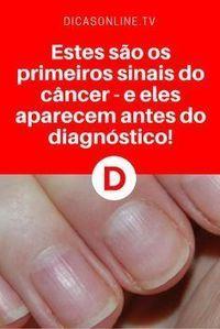 Sintomas de câncer | Um desses sinais é nas unhas. Saiba tudo sobre ele e os outros. Leia ↓ ↓ ↓ Low Carb, Natural Remedies, Diabetes, Al Dente, Kefir, Health Fitness, Health And Wellness, Healthy Life, Cancer