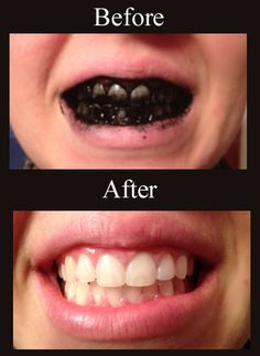 how to whiten teeth naturally with charcoal Best Way to Whiten Teeth Naturally. Activated charcoal... easy way to whiten teeth... it works!