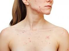 http://www.howtogetridofacneonyourback.com/how-to-get-rid-of-acne-on-your-chest   Looking for a natural at home remedy to get rid of chest acne? I will teach you how to get rid of acne on your chest within one month!