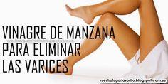 VINAGRE DE MANZANA PARA ELIMINAR LAS VARICES Hoy vamos a hablar de unos de los remedios caseros para varices mas efectivos y económicos: el vinagre de manzana.