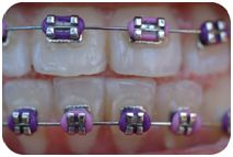 Heavy Metal or Harmonized Health. An article by Nadine Artemis. Braces change Faces. Click here to get the facts and grow a beautiful face: http://www.livinglibations.com/default/body-care-articles/body-care-articles/healthy_teeth_and_gums/body-care-articles/body-care/beauty-care-articles-and-tips/heavy_metal_or_harmonized_health