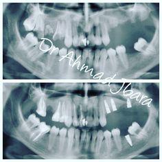 Asa s-a prezentat pacienta (poza de sus)dupa o luna de zile era cu tratamentele de canal realizate cu ajutorul microscopului si asa i-am salvat radacinele care aveau sperante mici (1.4;1.5;1.7) si dintii 1.1;1.2 si 4.7si un sinus lift in cadranul 2 cu 3 implanturi dentare si un implant la nivelul 3.6au trecut 6 luni si acum e timp sa obtinem o lucrare de estetica superioara printr-o combinatie de lucrari din zirconiu si coroane din ceramica presata si din zirconiu si fatete din ceramica…