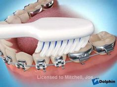 How to brush your teeth with braces on www.dulaortho.com