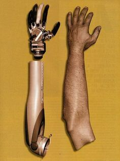This newly advanced prosthetic limb is the result of a collaboration between the University of Pittsburgh and Johns Hopkins University. The arm has the ability to accurately detect vibration,temperature, contact with objects and degree of pressure. It also has up to 27 degrees of freedom of moment, making it far more than a cosmetic addition.