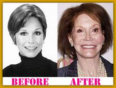 Joyce Meyer Bad Plastic Surgery | Mary Tyler Moore...