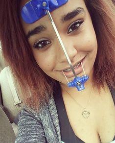 #braces #braceface #metalbraces #girlswithbraces #headgear #facemask