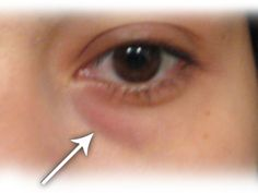 Home Remedy for Treating Eye Bags - Step to Health