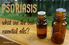 what are the best essential oils for psoriasis & scalp psoriasis