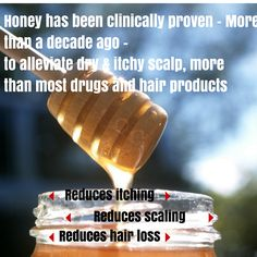 Honey treats dry itchy scalp better than most drugs and hair products (+more amazing home remedies for dry scalp) Itchy Dry Scalp Remedy, Natural Hair Tips, Natural Hair Styles, Home Remedies, Natural Remedies, Beautiful Black Hair, Health And Beauty Tips, Beauty Care, Diy Beauty