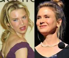 Chatter Busy: Renee Zellweger Plastic Surgery