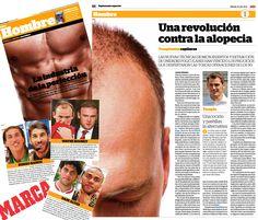 Recientemente el diario deportivo Marca incluyó un reportaje sobre el cuidado masculino. En éste hablaron con el doctor Eduardo López Bran sobre nuestra técnica revolucionaria para el trasplante capilar.