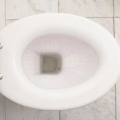 Get rid of severe toilet bowl stains with the proper cleaning products.