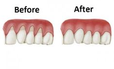 Natural Remedies Which Will Help You Grow Back The Receding Gums!   http://www.health4uspro.com/health/natural-remedies-which-will-help-you-grow-back-the-receding-gums/