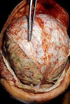 EMT/Paramedic    Brain's Duramater.....-Scythe