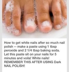 How to whiten stained nails. I have not gone without polish on my toe nails in forever, but they were starting to look gross under the polish. So I decided to Give this a try. Beauty Care, Diy Beauty, Natural Beauty Hacks, Beauty Hacks Diy, Face Beauty, Beauty Box, Stained Nails, Skin Care Routine For 20s, Skincare Routine