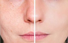 Many people find it important to keep their skin healthy when they have acne scars. Read about acne scars and skin health here Oily Skin Treatment, Natural Acne Treatment, Beauty Care, Diy Beauty, Beauty Hacks, Tips Belleza, Acne Scars, Health And Beauty, Face Makeup