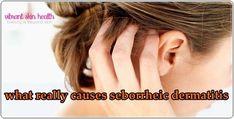What really causes seborrheic dermatitis