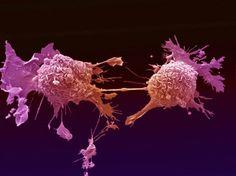 Casos de cancro vão aumentar 12 a 15% por ano em Portugal #Saúde