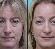 ¿Quieres saber cuáles son las causas de las bolsas en los ojos y cómo puedes eliminarlas? | Cuidar de tu belleza es facilisimo.com