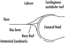 Developmental dysplasia of the hip usg ile ilgili görsel sonucu
