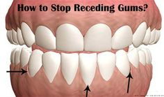 Grow Back Your RECEDING GUMS With These Home Remedies