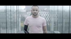 Glaze Prosthetics - first replaceable arm prosthetic system.