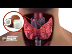 After This VIDEO You Will Throw Away Your THYROID Medication And Start Consuming Coconut Oil - YouTube