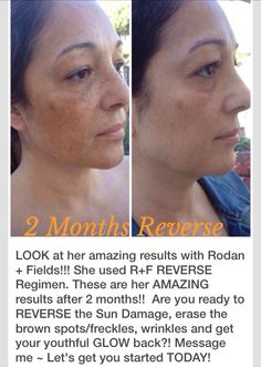 After two months of the R+F Reverse regimen for sunspots and discolorations. Message me or visit janetjun.myrandf.com for more info.