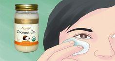 Το λάδι καρύδας είναι ένα από τα πιο ευεργετικά συστατικά, όταν πρόκειται για την υγεία και την ομορφιά. Εδώ σε αυτό το άρθρο θα σας παρουσιάσουμε κάποιες συνταγές που θα παρέχουν σίγουρα μερικούς λόγους για να αρχίσετε να χρησιμοποιείτε λάδι καρύδας και να δείτε τα οφέλη. Για τις παρανυχίδες Το μασάζ με λάδι καρύδας στις …