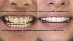 All Smiles Dental Clinic, Bangalore offers best Cosmetic dentistry services for patients struggling with Oral problems with expert Cosmetic Dentist at fare rates Cosmetic Dentistry Cost, Dental Aesthetics, Teeth Whitening Diy, Smile Dental, Smile Makeover, Smile Design, Dentist In