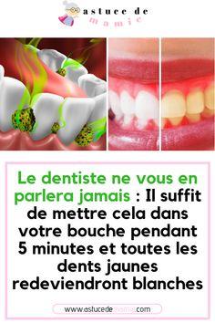 Le dentiste ne vous en parlera jamais : Il suffit de mettre cela dans votre bouche pendant 5 minutes et toutes les dents jaunes redeviendront blanches #dent #blanchir #éclaircir #dentiste #astuce