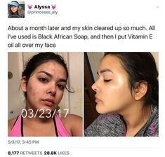 Skin Care Routine For Acne. Do you want the finest, tried and true skin-care tac. - Skin Care Routine For Acne. Do you want the finest, tried and true skin-care tactics? Skin Care Regimen, Skin Care Tips, Haut Routine, Beauty Hacks For Teens, Skin Care Routine For 20s, Clear Skin Routine, Skincare Routine, Revision Skincare, Clear Skin Tips