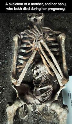 Skeleton-Mother♡Baby♡Inside
