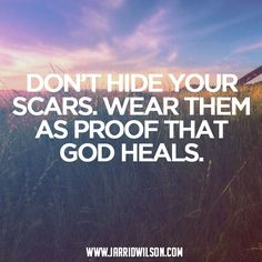Jarrid Wilson - Don't hide your scars. Wear them as proof that God...