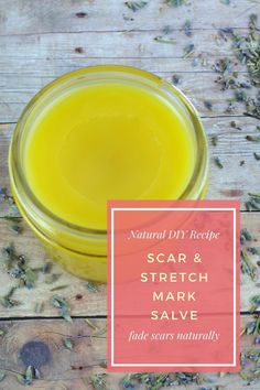 Homemade Scar Treatment Recipe With Helichrysum Natural Remedies For Arthritis, Cold Home Remedies, Natural Remedies For Anxiety, Natural Cures, Natural Health, Natural Skin, Scar Remedies, Herbal Remedies, Health Remedies
