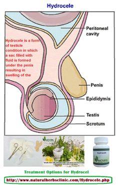 19 Best Hydrocele Treatment Images On Pinterest | Herbal ...