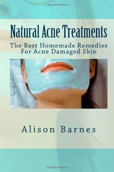 Natural Acne Treatments: The Best Homemade Remedies For Acne Damaged Skin