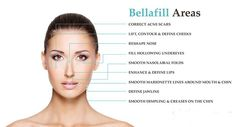 Longest Lasting Results years for the treatment of smile lines, acne scars and severe facial wrinkles with Bellafill. Located in Vero Beach. Facial Fillers, Dermal Fillers, Cosmetic Clinic, Cosmetic Procedures, Lines Around Mouth, Types Of Facials, Nasolabial Folds, Lip Augmentation, Lip Injections